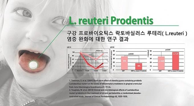 구강 프로바이오틱스 락토바실러스 루테리의 염증 완화 효과에 대한 연구 결과.